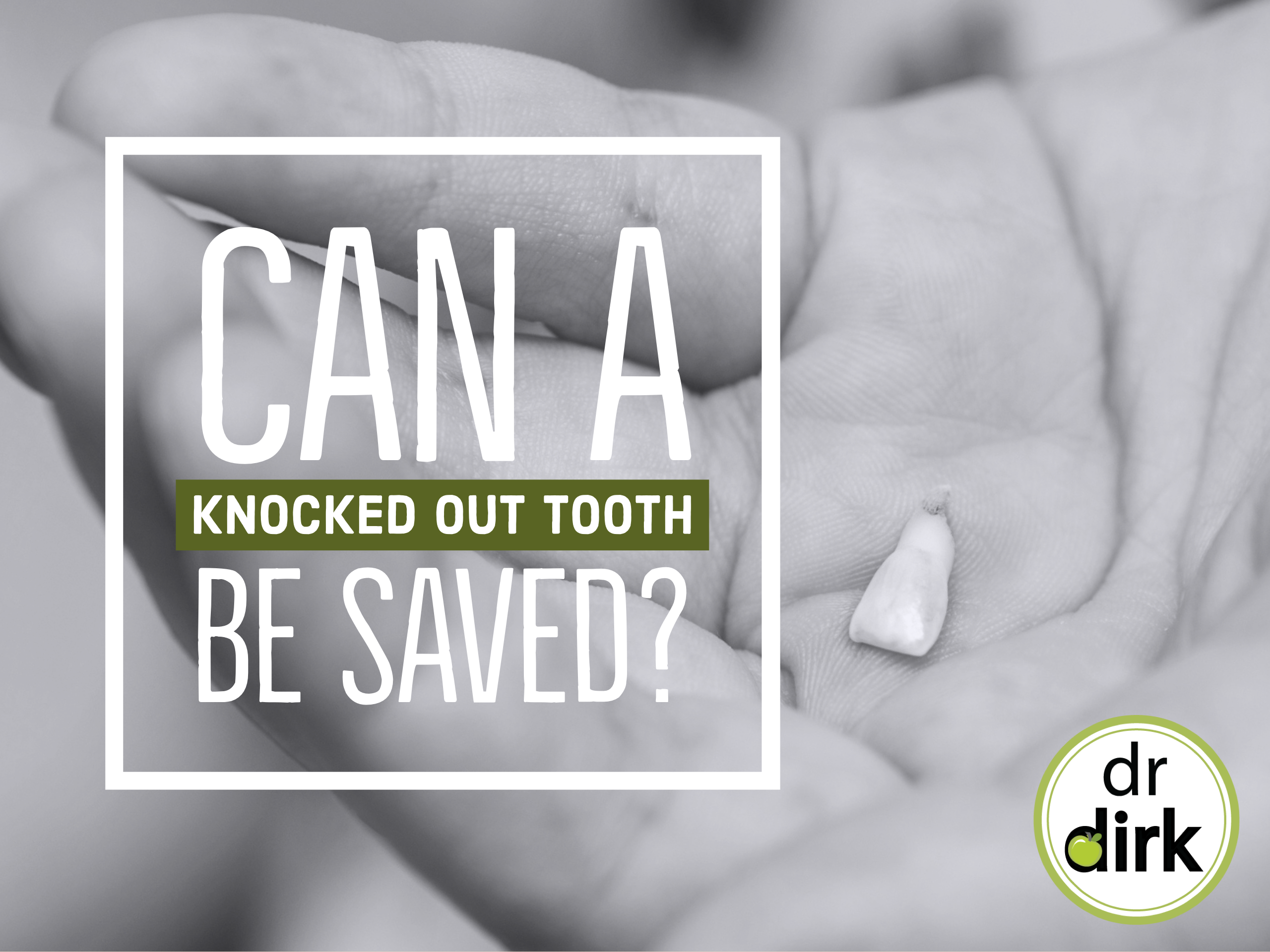Can A Knocked Out Tooth Be Saved by Your Emergency Dentist in Calgary?